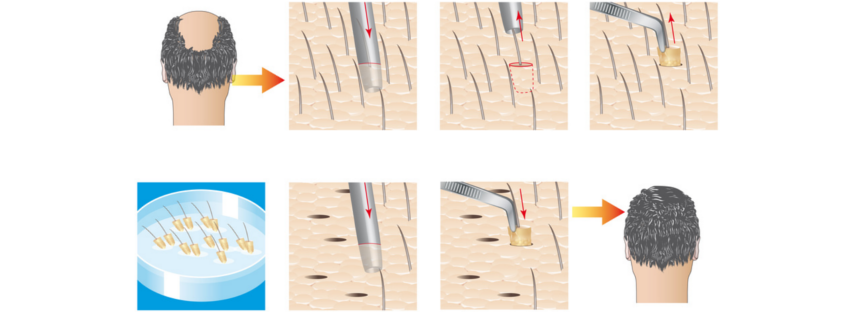 Techniques of hair transplantation